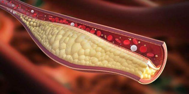 Dieta anti colesterolo: perché è importante fare attenzione